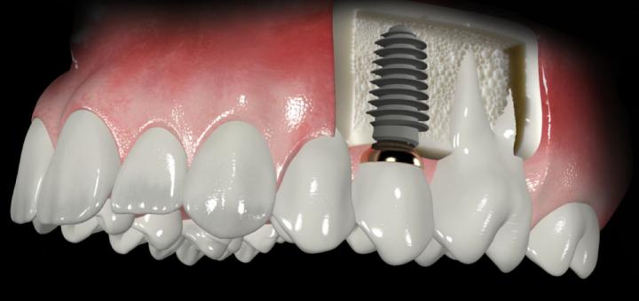Implantes dentales header