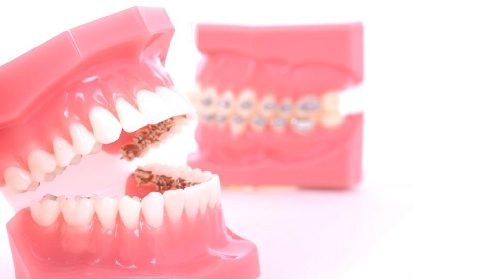 Ortodoncia lingual vecindario