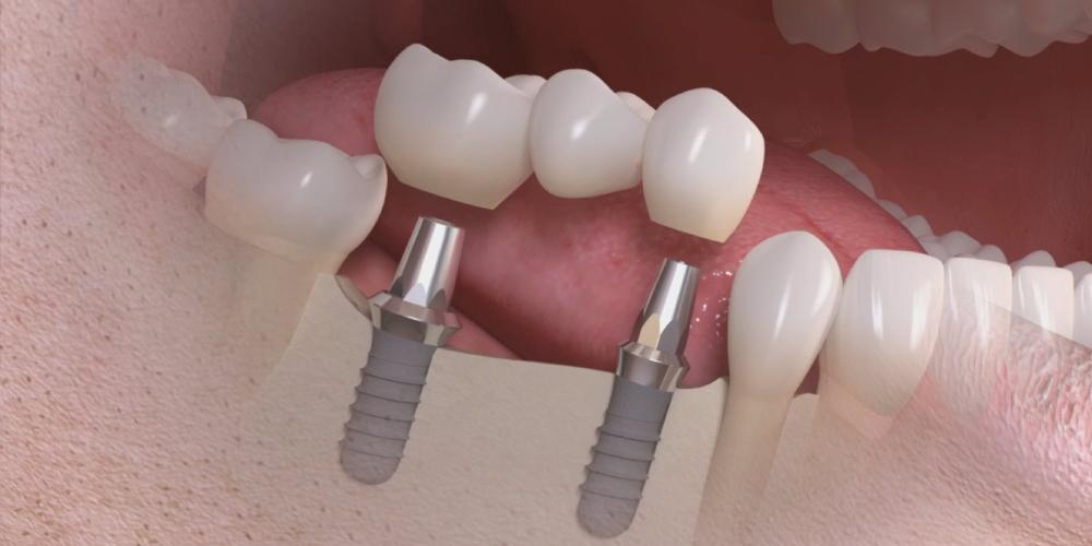 implantes con liquen plano