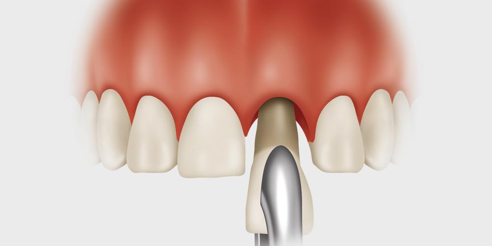 implante inmediato postextraccion